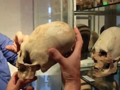 Elongated skulls; probably would be called grave-robbing n the US.